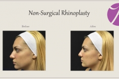 Non-Surgical Rhinoplasty Before After Case 01