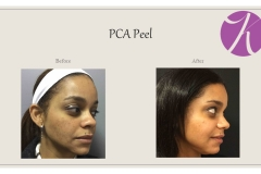 Chemical Peels and Microdermabrasion Before After Case 05