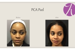 Chemical Peels and Microdermabrasion Before After Case 04