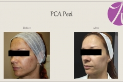 Chemical Peels and Microdermabrasion Before After Case 03