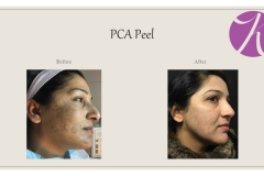 Chemical Peels and Microdermabrasion Before After Case 06