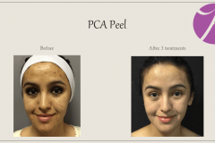 Chemical Peels and Microdermabrasion Before After Case 02