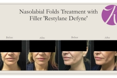 Cheeks, Nasolabial folds and Chin Treatment Before After Case 01