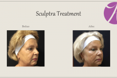 Sculptra for Rejuvenation Before After Case 07