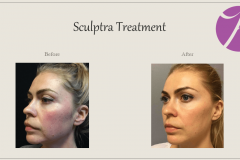 Sculptra for Rejuvenation Before After Case 06