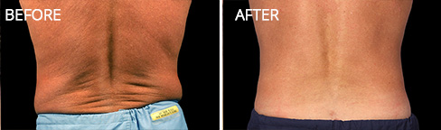 Coolsculpting Before after 02