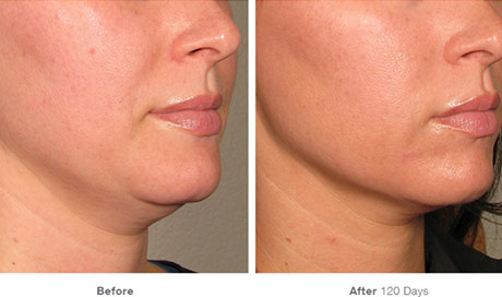 Utherapy Underchin Results
