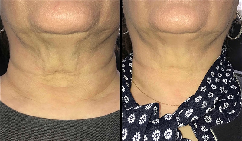 Infini Before and After Treatment