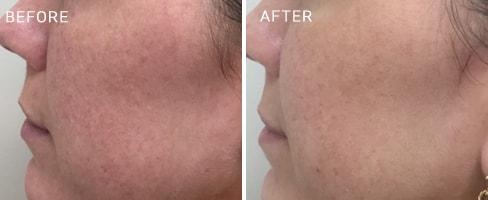 LaserMD Skin Case 1