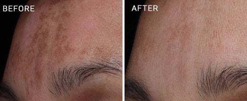 LaserMD Skin Case 3