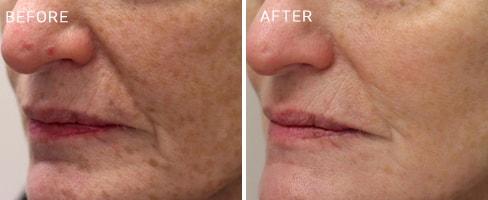 LaserMD Skin Case 4