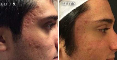 Acne Scar Case 1