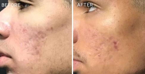 Acne Scar Case 2