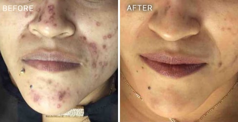 before and after actual patient of Acne Scar