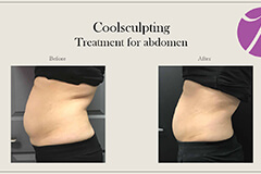 Coolsculpting-4 Thumb