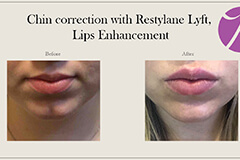 Lip Fillers-1-thumb