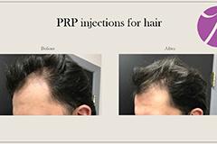 Hairloss 2