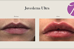 Lips Enhancement 11