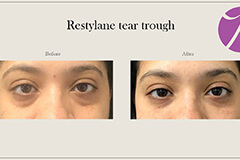 Restylane-1