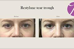 Restylane-2