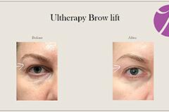 Ultherapy Brow Lift