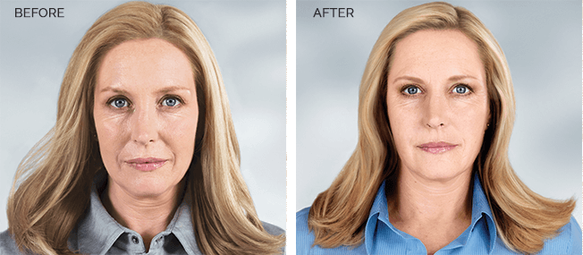 before and after of sculptra