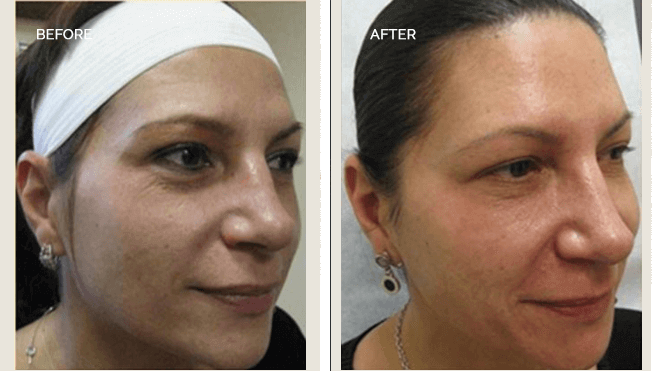 Sculptra Actual Patient Results - 02