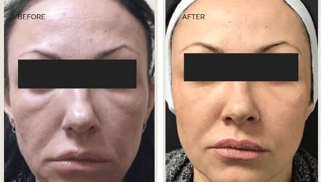 Sculptra Actual Patient Results - 01