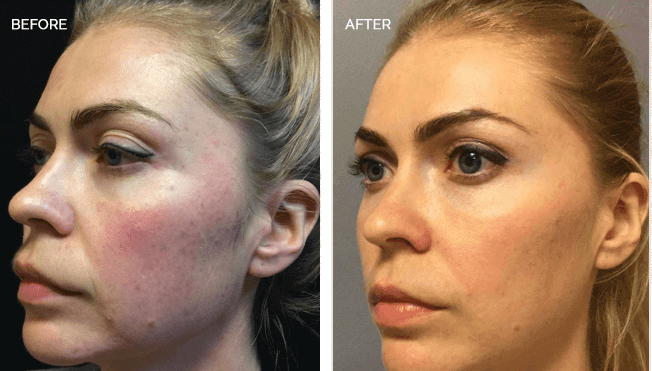 Sculptra Actual Patient Results - 04