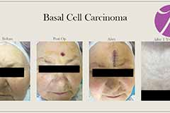 MOHS Surgery on Basal Cell Carcinoma