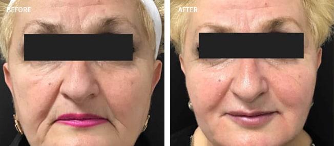 Botox Actual Patient Results - 01