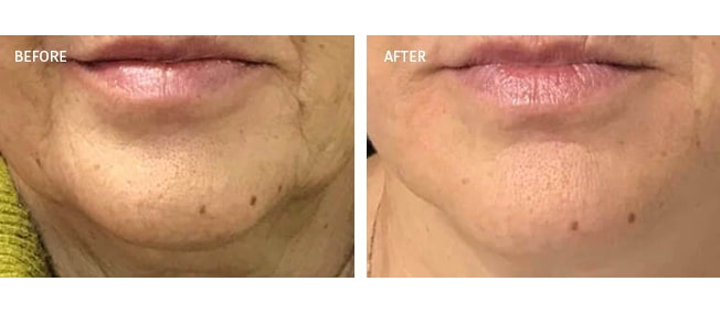 before and after actual patient of Radiesse Treatment