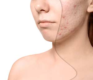Get Rid of Acne Scars Dyker Heights in Brooklyn, NY area