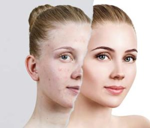 Photofacial Treatment in Brooklyn NY area