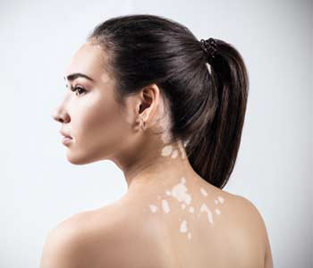 Treatment for Vitiligo Near Midwood area