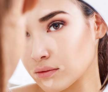 Laser Therapy For Vitiligo Treatment Dermatologist Near Midwood Ny