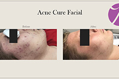 Acne Treatment 2