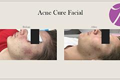 Acne Treatment 4