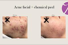 Acne Treatment 5