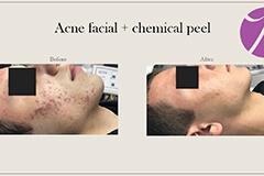 Acne Treatment 6