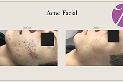Acne Treatment 7