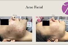 Acne Treatment 8