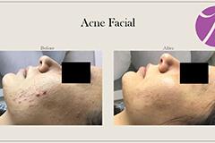 Acne Treatment 9