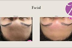 Acne Scars Treatment 1