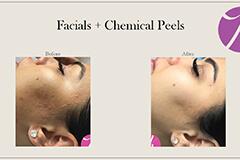 Acne Scars Treatment 2