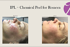 IPL + Chemical Peel for Rosacea