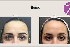 Neuromodulators Botox