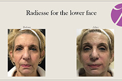 Radiesse for the lower face 1