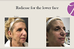 Radiesse for the lower face 2
