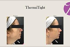 ThermiTight 3